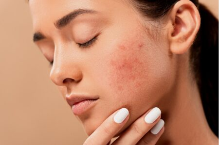 Nie wieder Akne? – Wie CBD dir helfen kann erfährst du hier